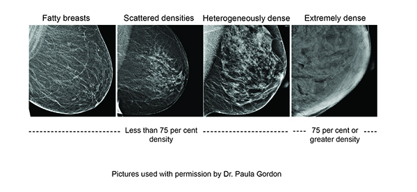 Screening Breast Dense Breast Image